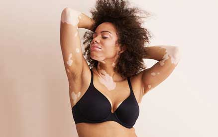 Aerie's New Lingerie Campaign Includes Women with Disabilities and Chronic Illnesses
